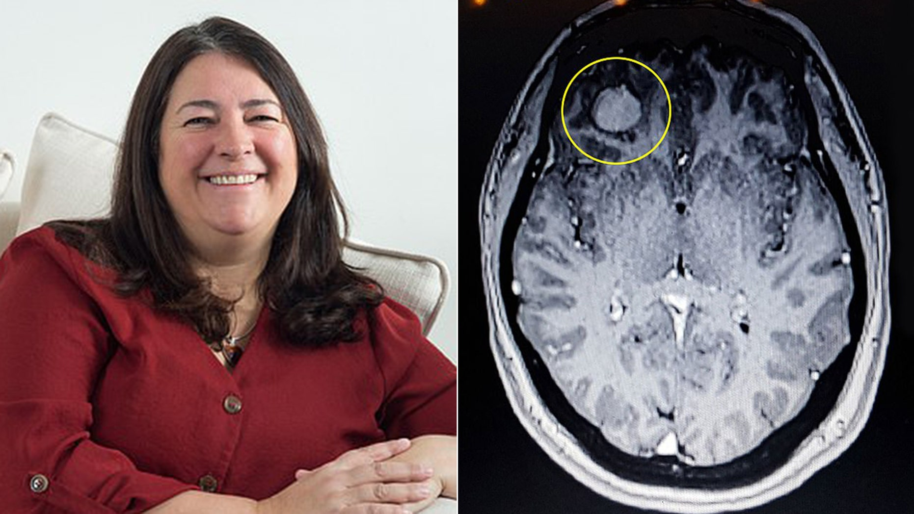 Elaine Lee-Tubby said she went for the MRI to investigate severe headaches following a 2017 car accident, which revealed a tumor had been growing behind her eye.