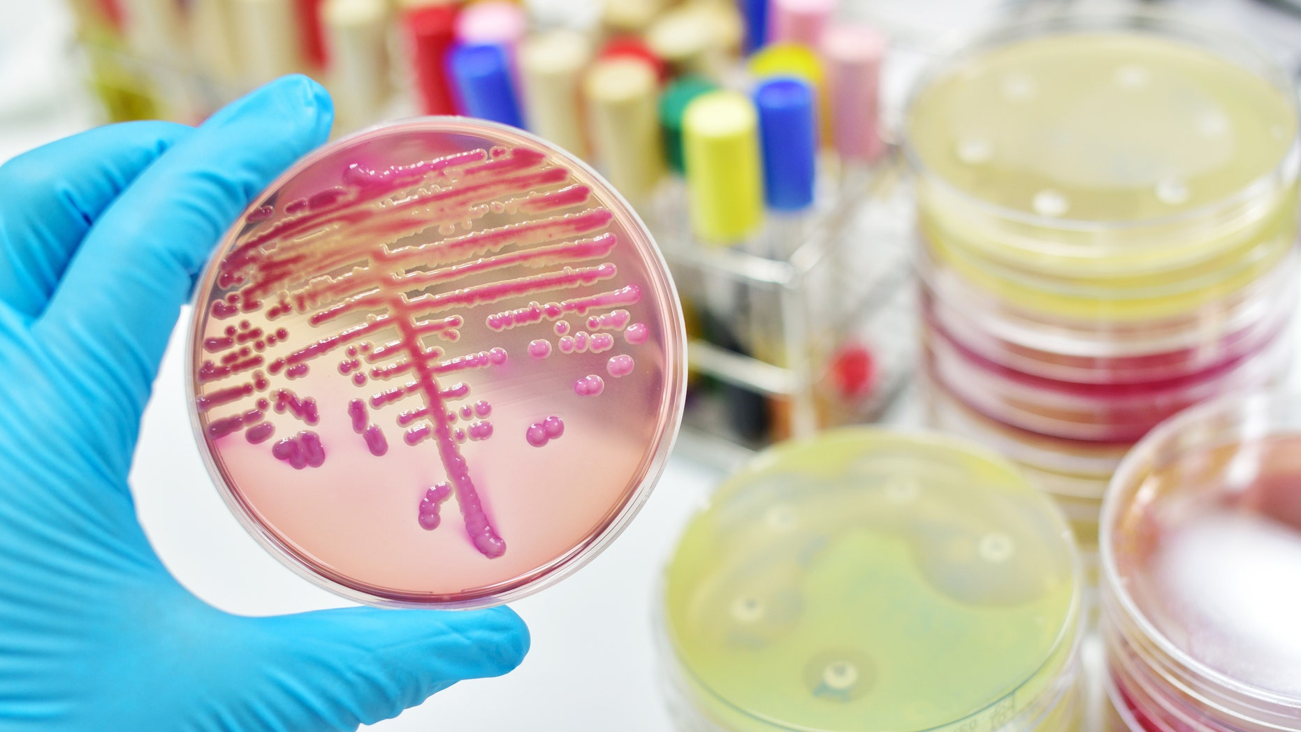 The fungus, calledCandida auris, is a yeast that normally lives harmlessly on the skin and mucous membranes.