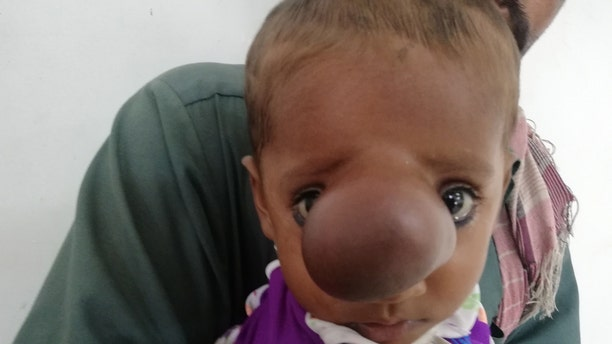 The boy's parents say he was born with a tiny bump on his nose that has continued to grow as he ages.