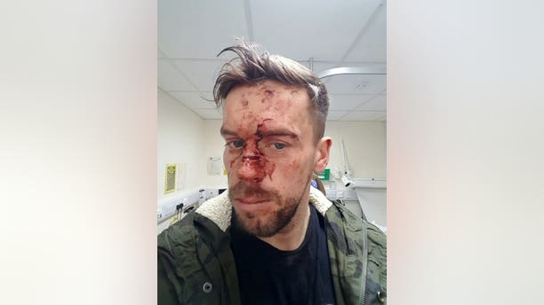 """Groom-to-be Scott Richards was attacked at a local pub the night before his wedding day.""""I still have nightmares about it now, where I wake up in a cold sweat and can't get back to sleep,"""" Scott said."""