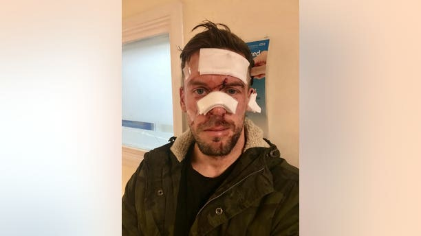 Scott Richards was attacked by a man at a pub the night before his wedding.