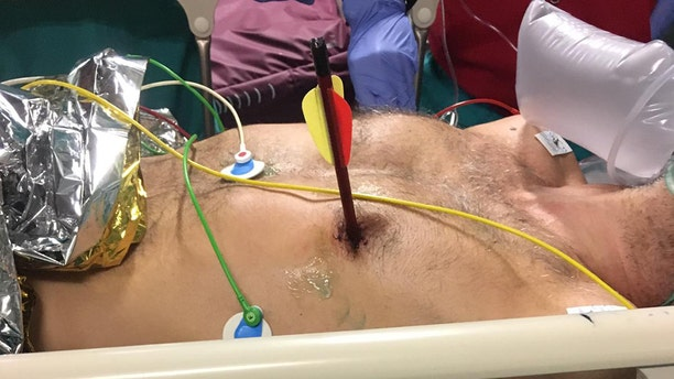 A man in Italy arrived at Molinette Hospital in Turin on May 21 with an arrow sticking out of his chest, reports say.