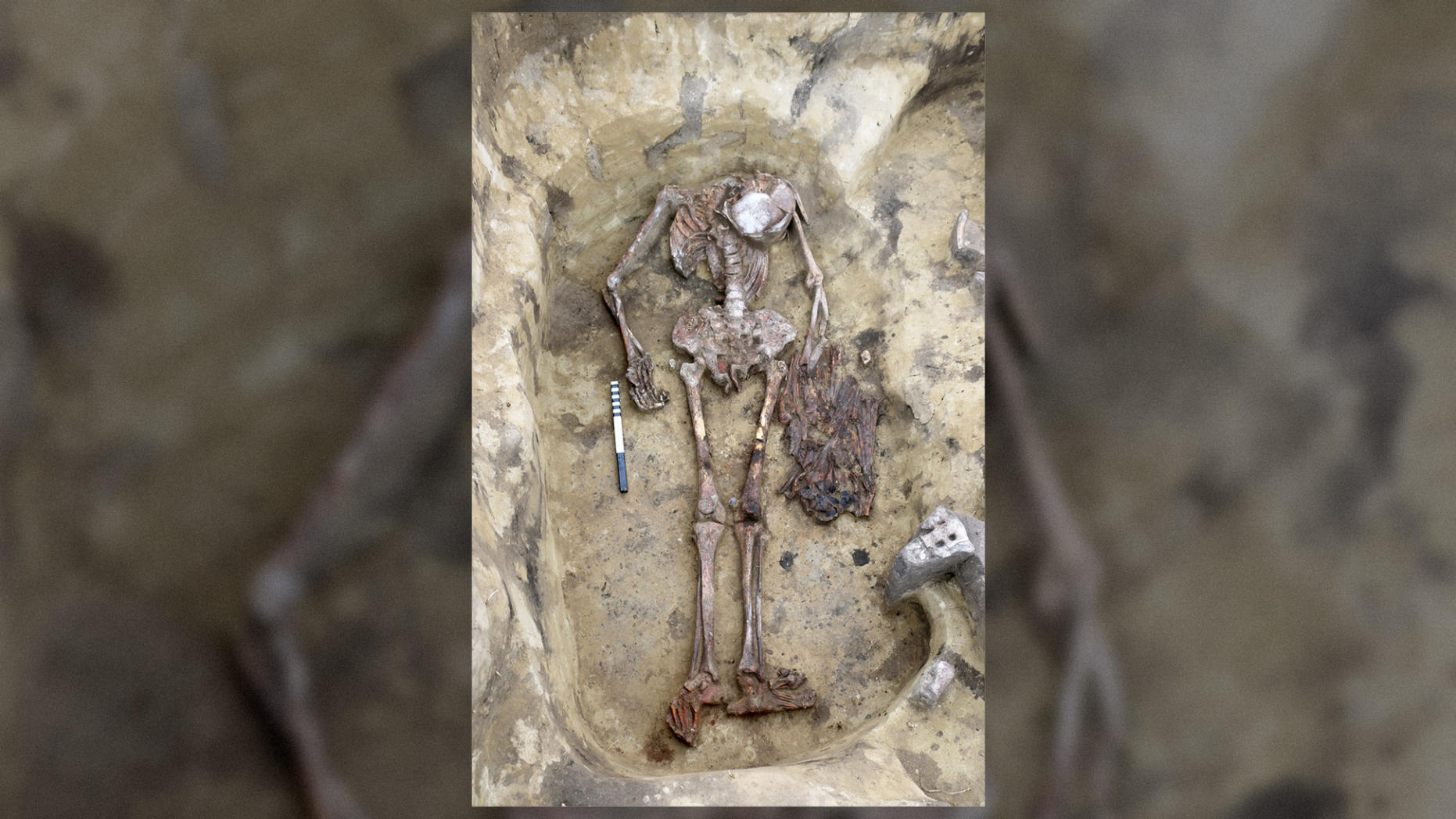 "Remains of the ""birdman"" were found in a grave in the Ust-Tartas archeological site in Western Siberia and date to the Bronze Age."