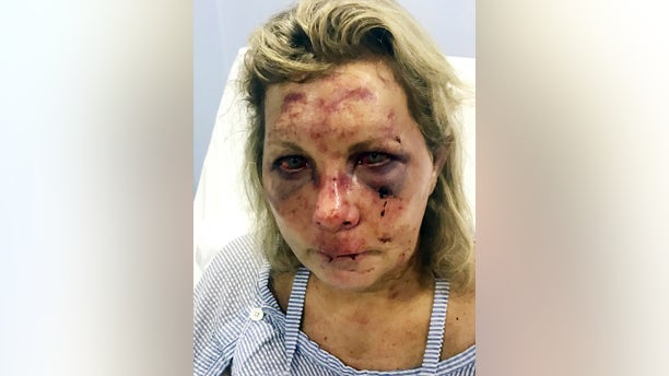 Tammy Lawrence-Daley after an attack at a resort in Punta Cana, Dominican Republic in January 2019. Lawrence-Daley made the attack public on social media, detailing a vicious hours-long assault by a man she said was wearing the uniform of an all-inclusive resort. (Chris Daley via AP)