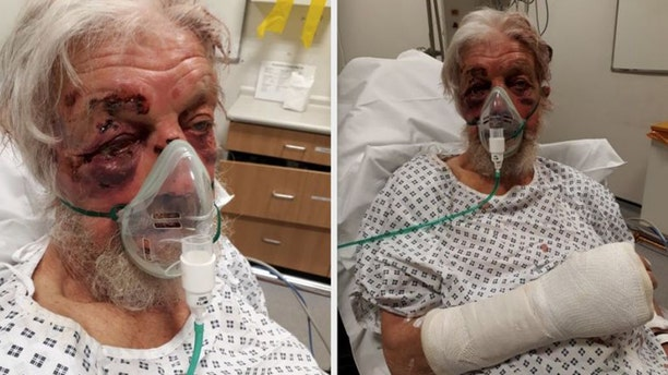 """Paul Eva, 80, sustained serious injuries after being struck in what police described as a """"nonsensical"""" attack in April."""