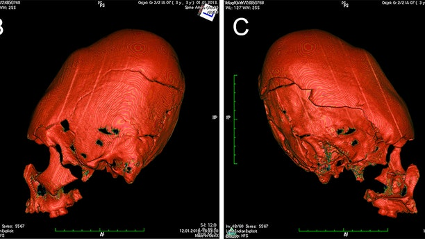 CT scan of the elongated skull.