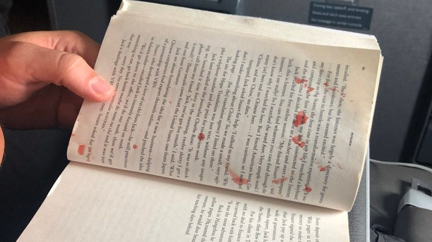 """""""Bloody mess on my flight to Miami. Woman in aisle seat has blister on her foot pop. Blood splatters across aisle, including on the two guys in front of me, one of their books, and the window,"""" passenger Andy Slater said of the scene."""