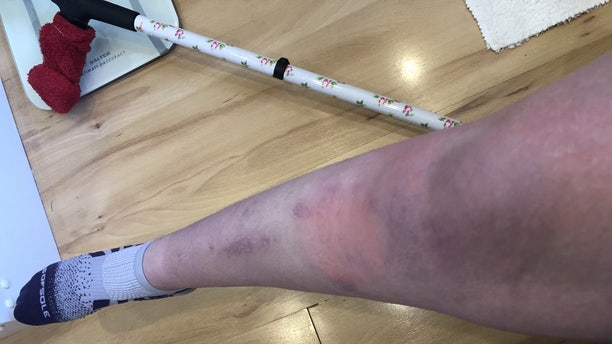 Helena Stone's leg as it suffered from complex regional pain syndrome (CRPS). (SWNS)