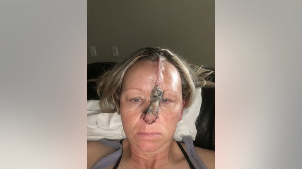 They used skin from her forehead to repair the hole in her nose, which took four weeks to heal.