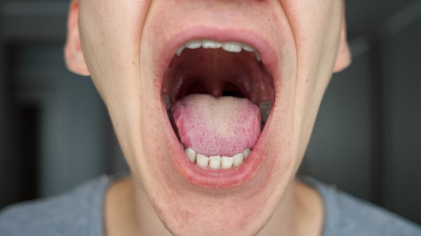 His tongue's strange appearance would turn out to be a sign of an underlying blood condition that required a relatively simple treatment,