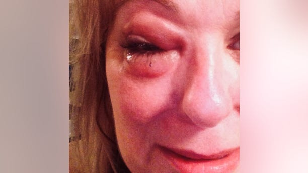 Chief Information Officer of the Tina Stewart Foundation, Allyson Hottinger, after a domestic violence attack.