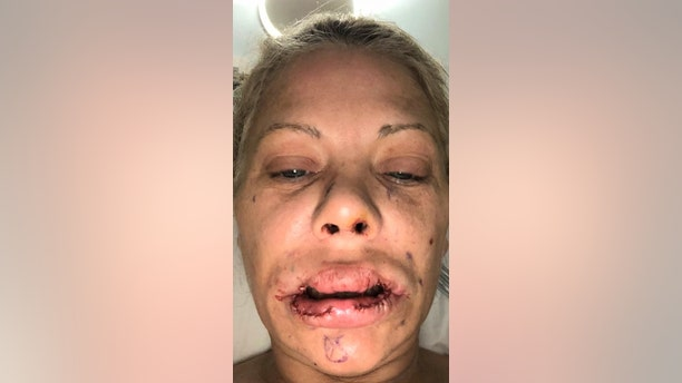 Her lips have been left covered in scars and are currently lopsided after she suffered a series of setbacks including infections.