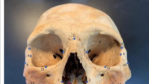 """Researchers analyzed the skulls of early Caribbean inhabitants, using 3D facial """"landmarks"""" as a genetic proxy for determining how closely people groups were related to one another. (Credit: Ann Ross/North Carolina State University)"""