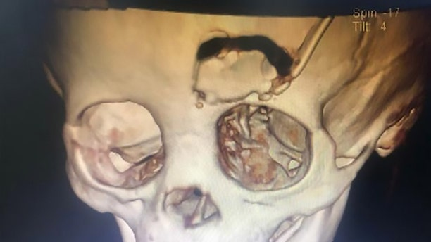 A scan showing a bone flap created to retrieve the skull fragment in the boy's head