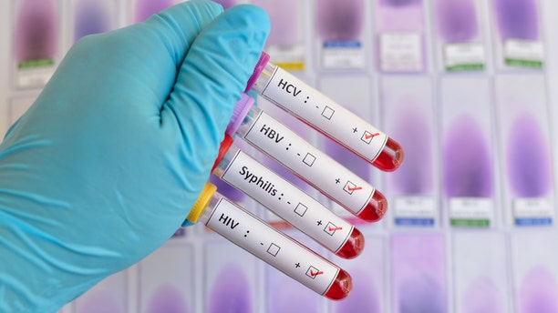 Half of all STDs in America occur in people under the age of 25.