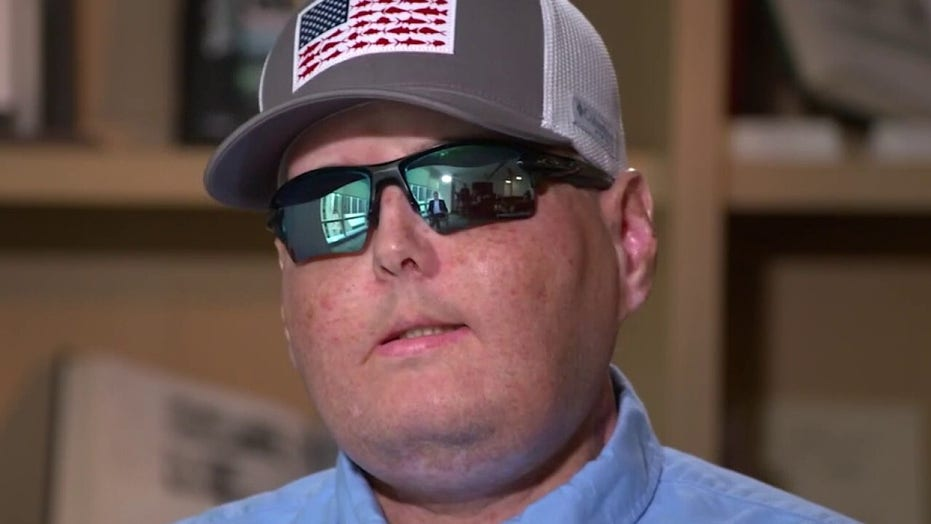 Firefighter talks new life 5 years after historic face transplant