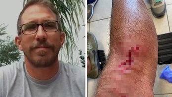 Alligator attack survivor bitten by shark in Florida