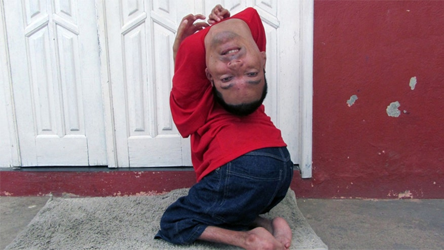 Brazilian man born with 'upside-down' head defies odds to become public speaker