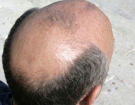 Facial bald spots