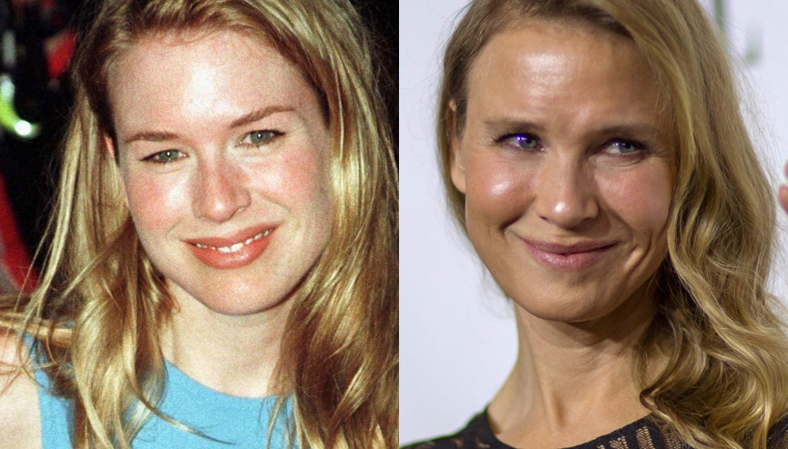 Renee Zellweger Nearly Unrecognizable After Facial Transformation