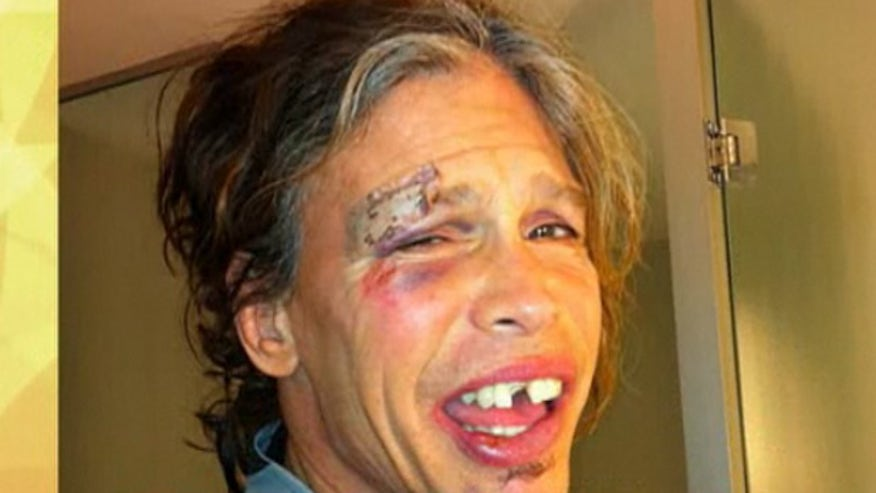 steven tyler face tooth