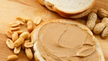 Parents are reporting more skin and food allergies in their children, a big government survey found