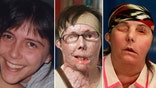 A Vermont woman who was disfigured after her ex-husband doused her with industrial strength lye in  has revealed her new face.