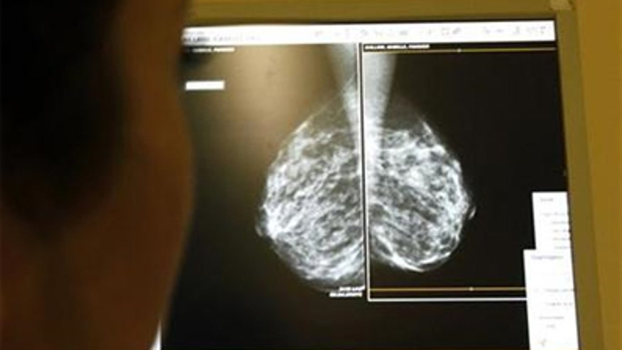 mammograms powerful breast cancer essay example Get the facts about breast cancer, including what it is, how many people are  diagnosed each year, and how many people will develop it within their lifetime.
