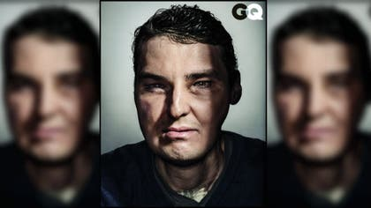 A man who received a face transplant two years ago because his face was badly disfigured in a shotgun accident posed for GQ to show off his new look