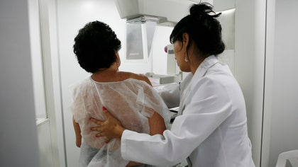 Breast cancer screenings may not lead to fewer deaths but may lead to overdiagnosis, U.S. researchers suggest.