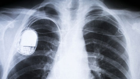People with dementia are more likely to get pacemakers than people without any cognitive impairment, according to a new study