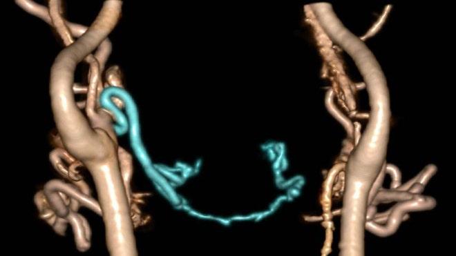 Blood vessel 2.jpg