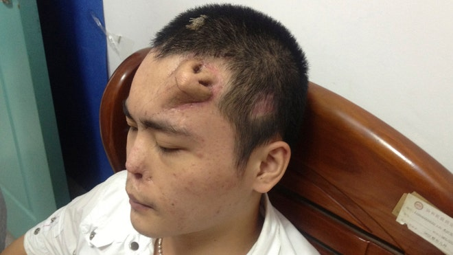 Doctors grow nose on man's forehead
