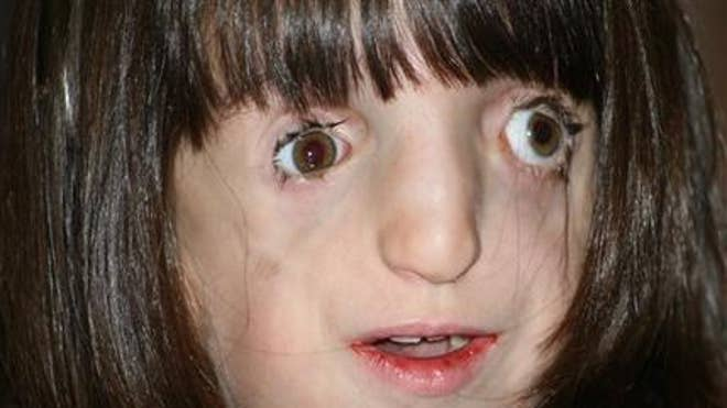 Photos of Facial Deformities http://www.foxnews.com/health/2012/05/03/girl-with-facial-deformities-learns-to-navigate-world/