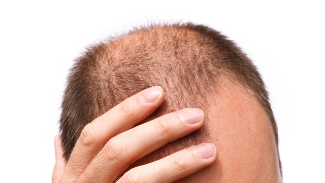 male pattern baldness