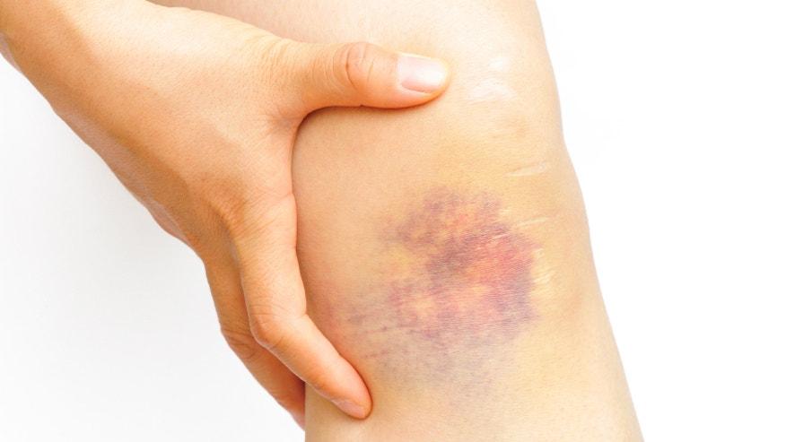 Bruise istock.jpg