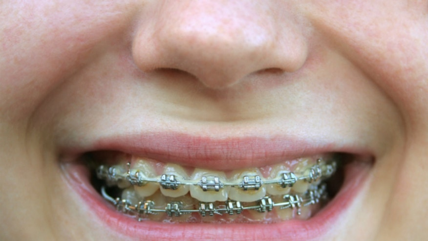 how to stop tooth pain from braces