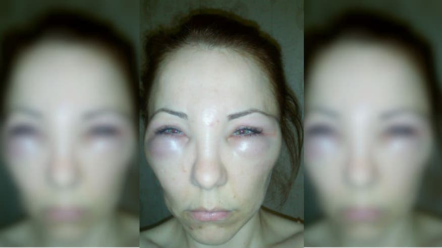 Woman gets snake venom injection instead of Botox
