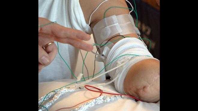 LIFEHAND bionic hand 1.jpg