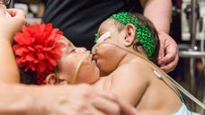 Two -month-old twins were successfully separated by doctors in Texas following a grueling -hour surgery.