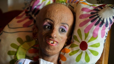 "Magali González Sierra, who has progeria, a disease that is ""The Curious Case of Benjamin Button"" in reverse, celebrates her quinceañera birthday after defying doctor's expectations."