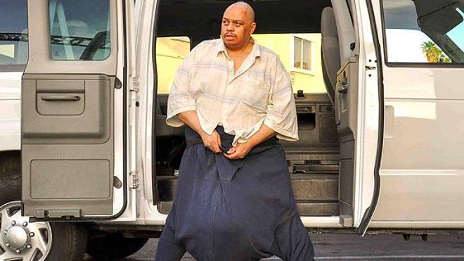 Man with 132-Pound Scrotum