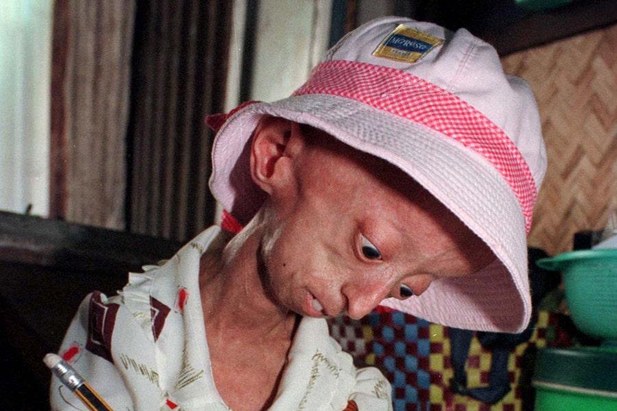 Rare diseases in children