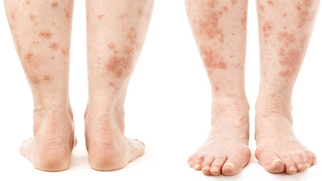 Natural Remedies For Rashes On Dogs