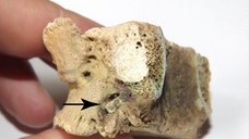 A horrific spinal injury caused by a bronze arrowhead didn't immediately kill an Iron Age warrior, who survived long enough for his bone to heal around the metal point, a new study of his burial in central Kazakhstan finds