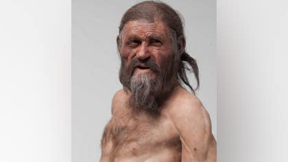 Otzi the Iceman, a well-preserved mummy discovered in the Alps, may have had a genetic predisposition to heart disease, new research suggests.