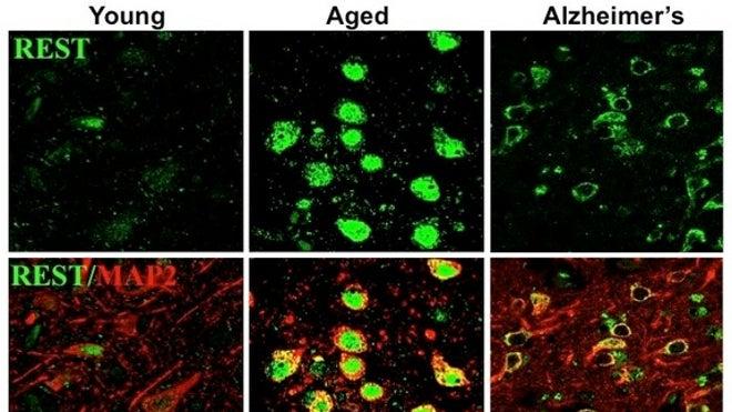 alzheimers-protein