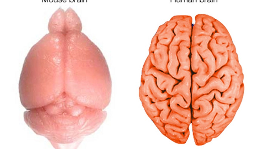 How the human brain gets its wrinkles