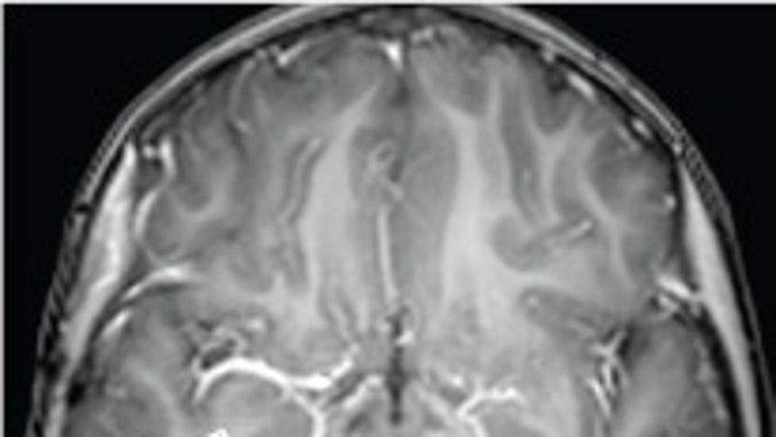 gelastic-brain-tumor