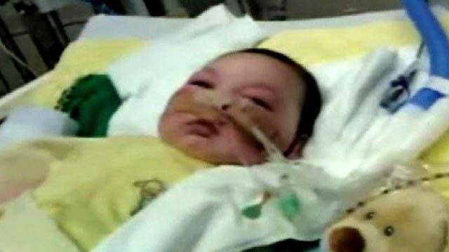 'Baby Joseph' Undergoes Surgery for Portable Breathing ...
